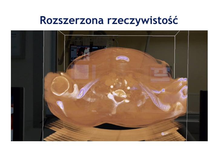BPA 3D.011