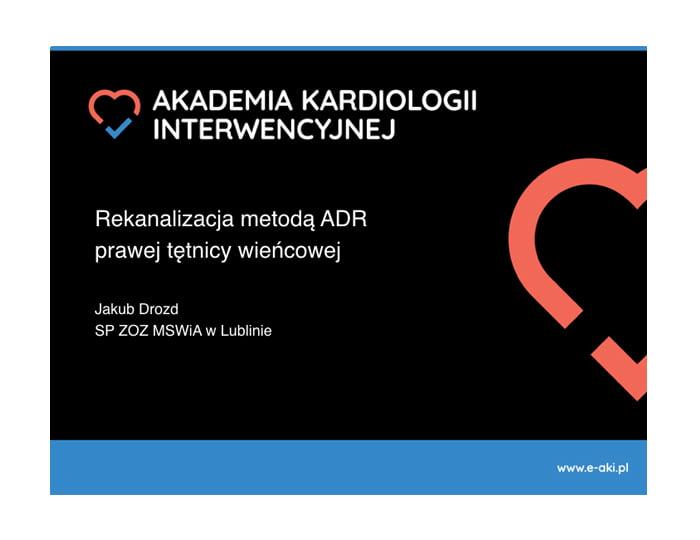 Rekanalizacja metodą ADR prawej tętnicy wieńcowej