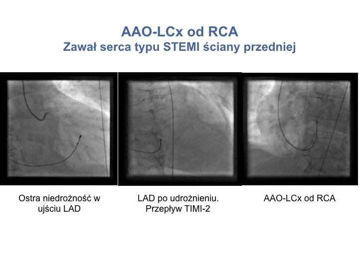 2. PCI w anomaliach-PL'.004