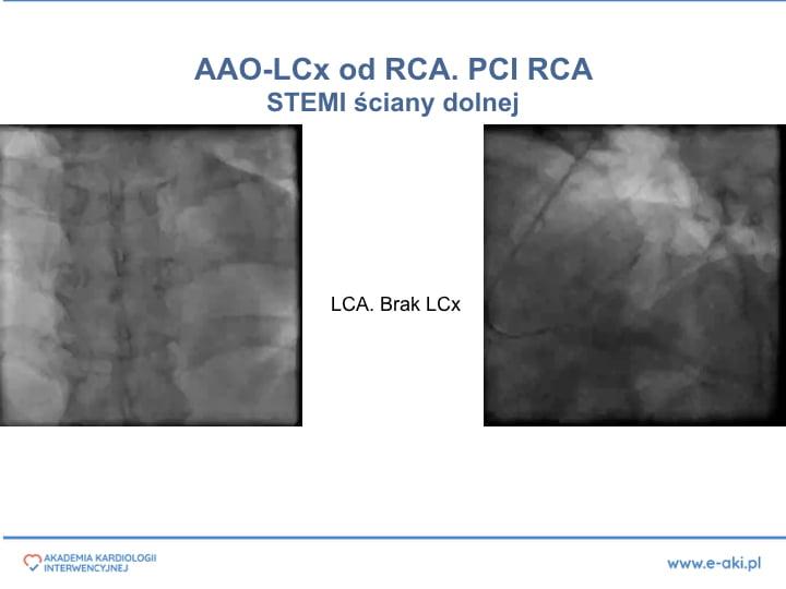 2. PCI w anomaliach-PL'.008