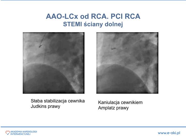 2. PCI w anomaliach-PL'.009