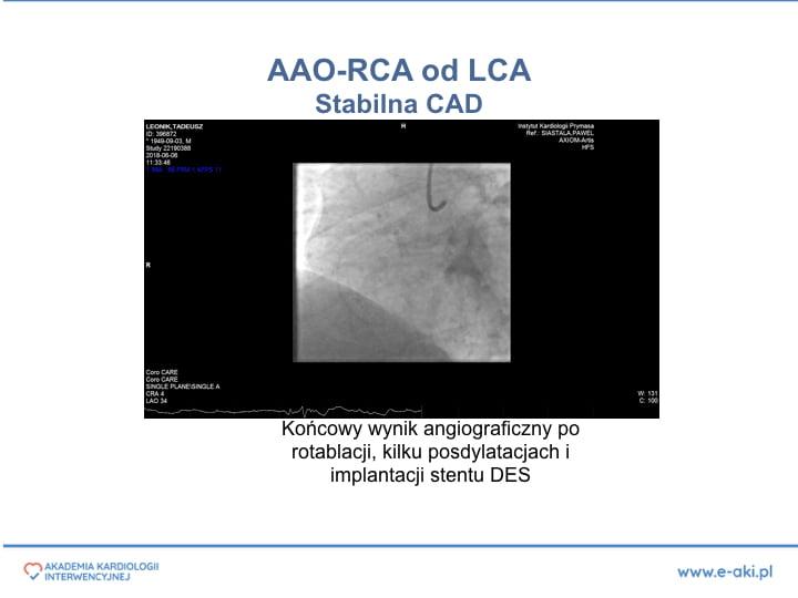 2. PCI w anomaliach-PL'.013