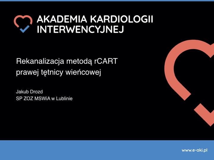 Rekanalizacja metodą rCART prawej tętnicy wieńcowej