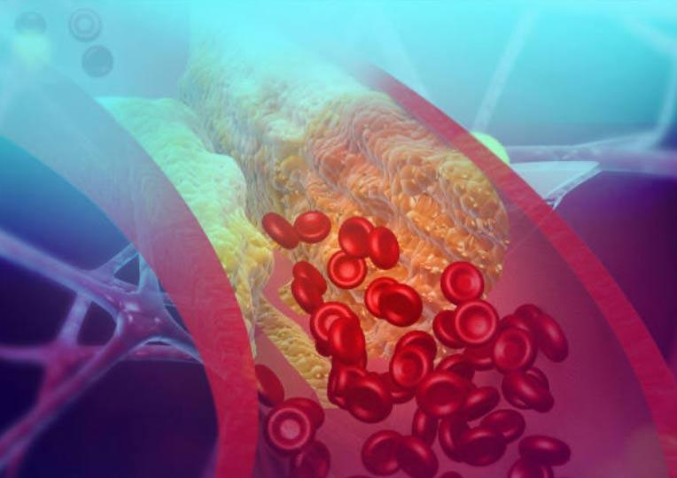 Rewaskularyzacja wieńcowa versus optymalna terapia farmakologiczna w przewlekłych zespołach wieńcowych – metaanaliza badań klinicznych