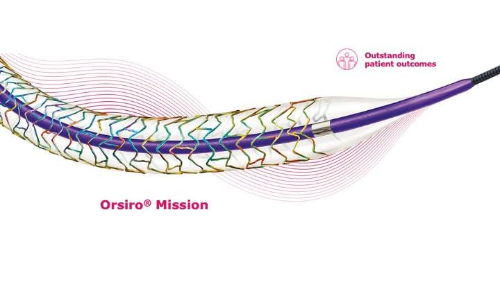 BIOSTEMI: Orsiro obniża TLF u pacjentów ze STEMI w 2-letniej obserwacji